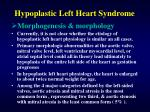 hypoplastic left heart syndrome2