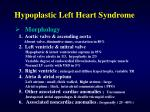 hypoplastic left heart syndrome3