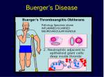 buerger s disease