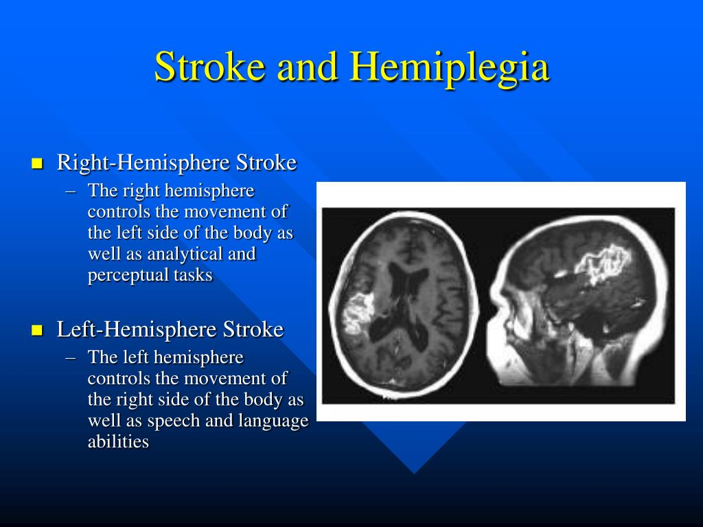 Stroke and Hemiplegia