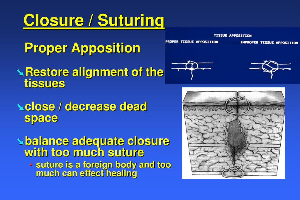 Closure / Suturing