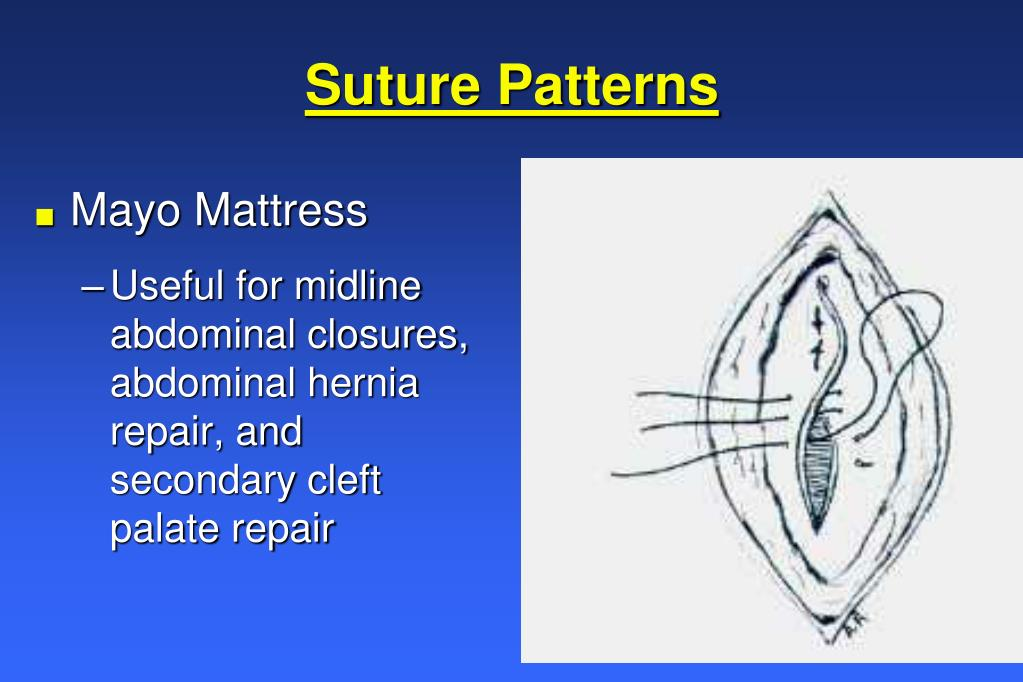 Suture Patterns