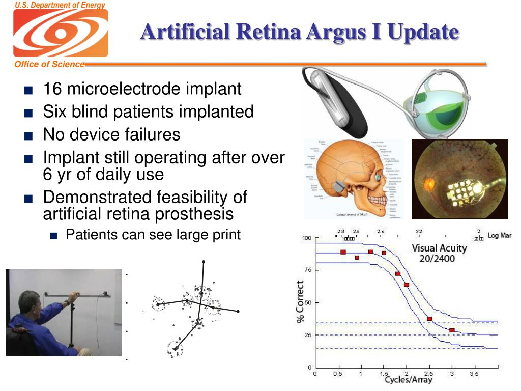 Artificial Retina Argus I Update