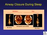airway closure during sleep