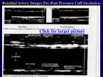 brachial artery images pre post pressure cuff occlusion