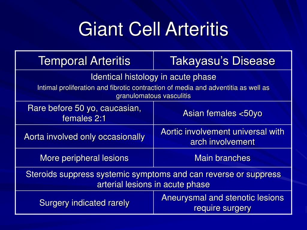 Giant Cell Arteritis