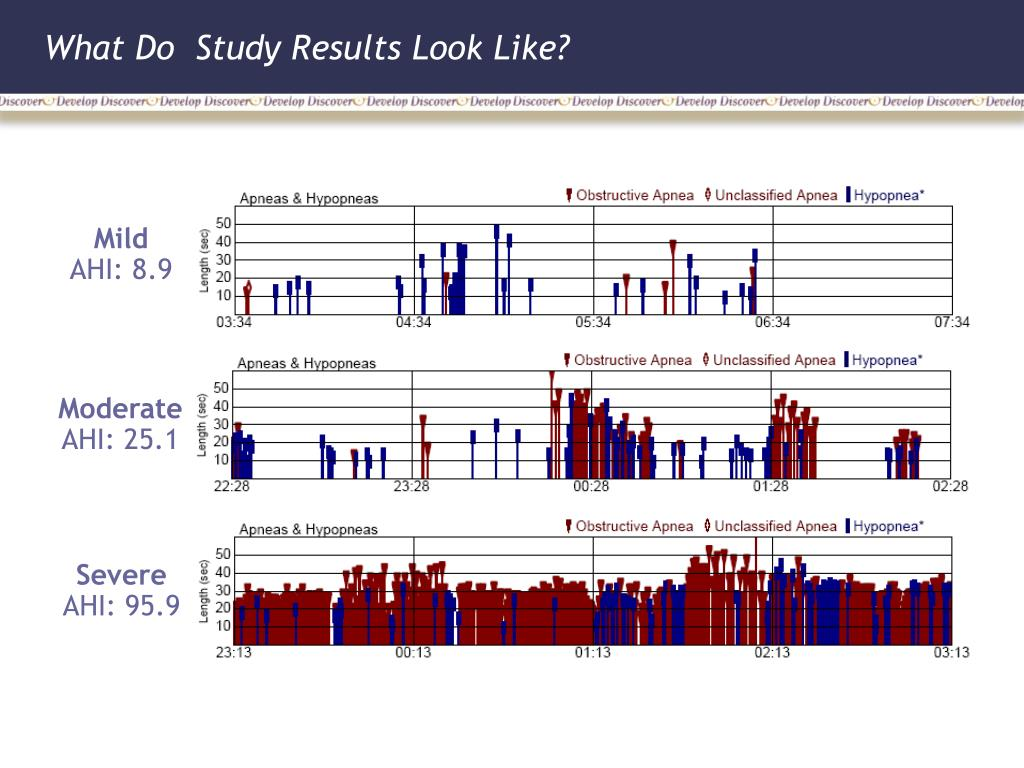 What Do  Study Results Look Like?