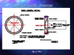vacuum vessel window