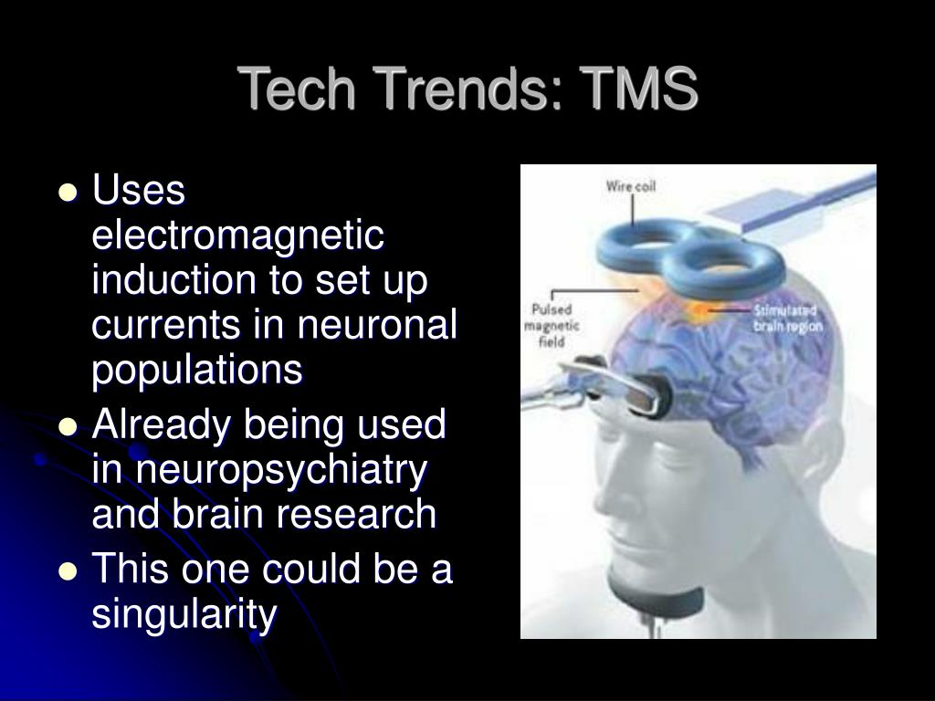 Tech Trends: TMS