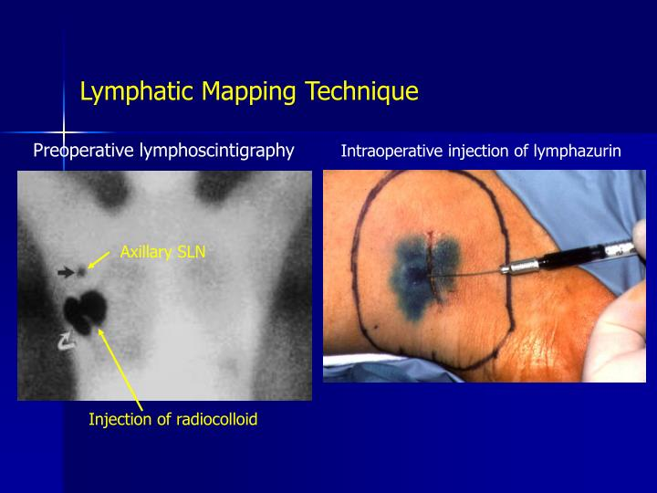 Preoperative lymphoscintigraphy