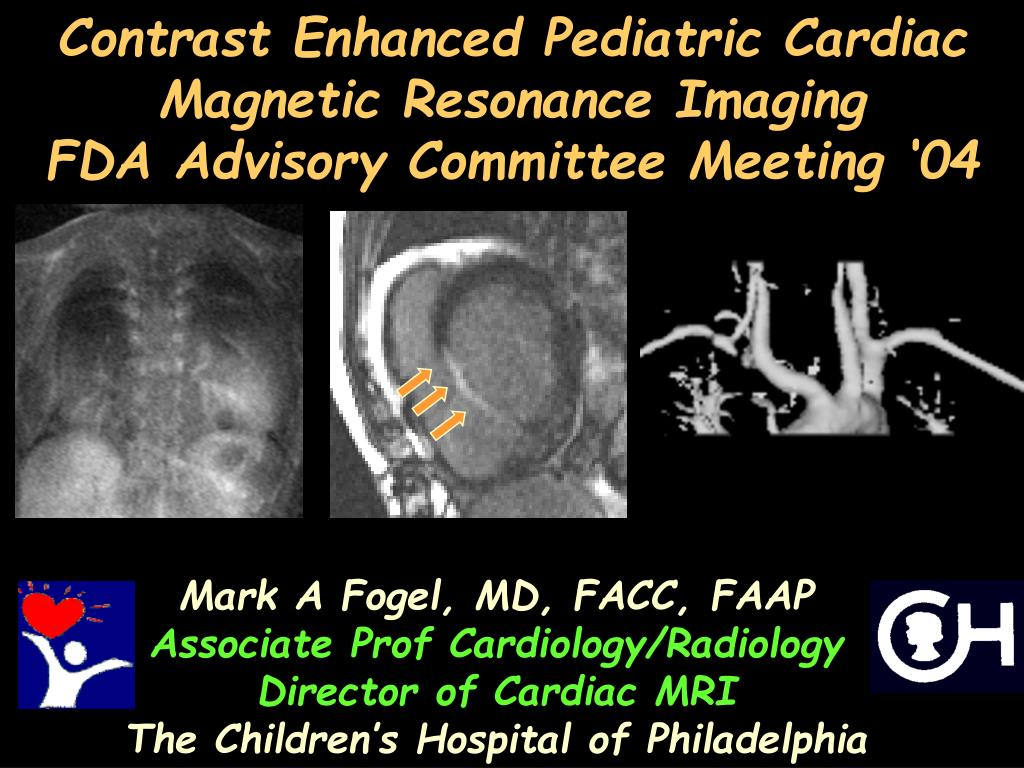 contrast enhanced pediatric cardiac magnetic resonance imaging fda advisory committee meeting 04 l.