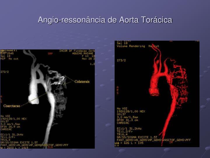 Angio-ressonância de Aorta Torácica