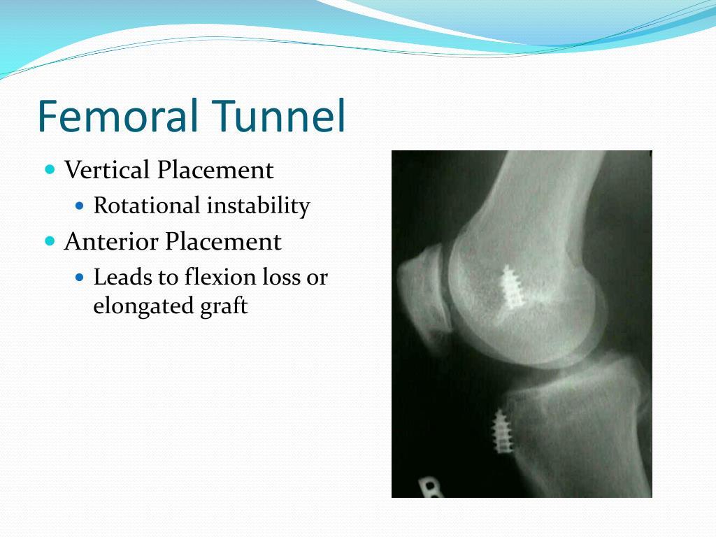 Femoral Tunnel
