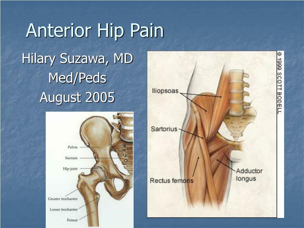 anterior hip pain l.