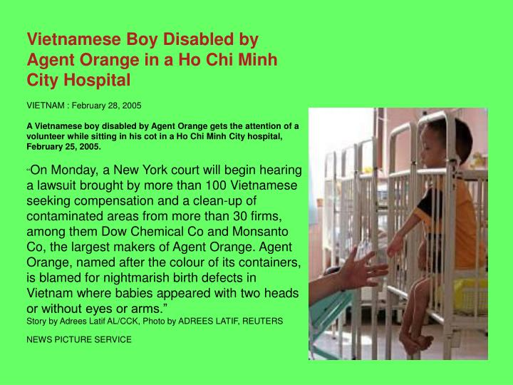 Vietnamese Boy Disabled by Agent Orange in a Ho Chi Minh City Hospital