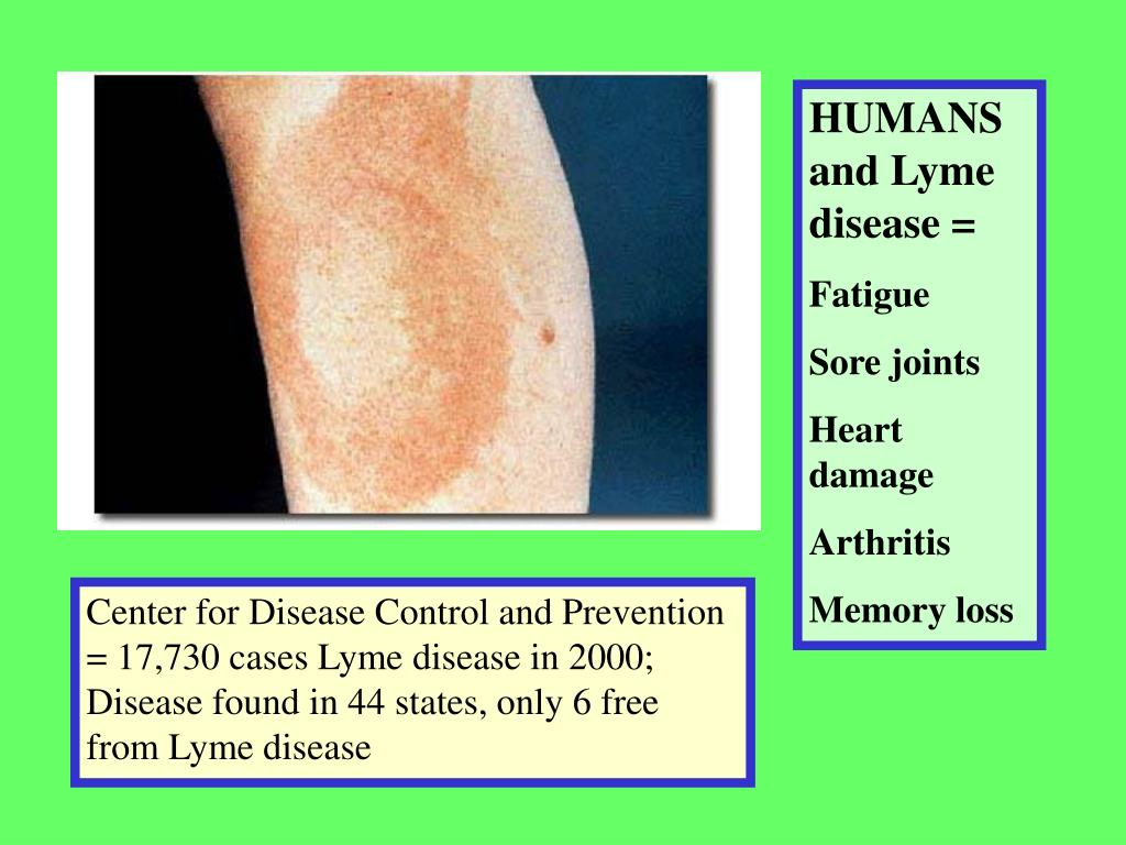 HUMANS and Lyme disease =