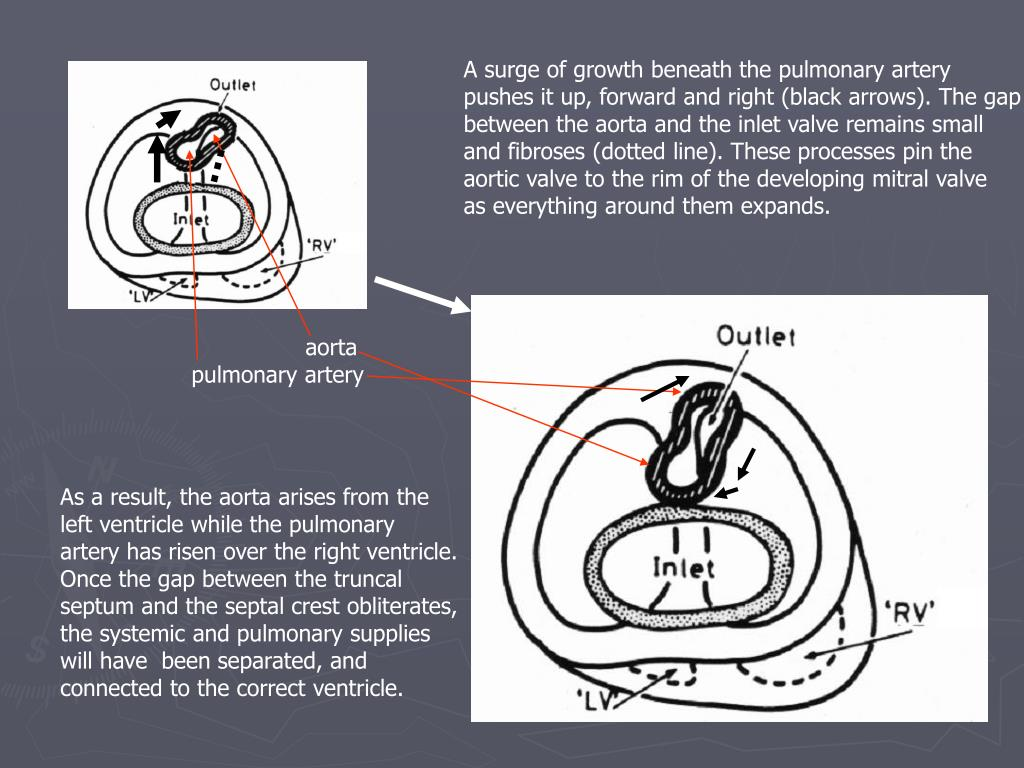 A surge of growth beneath the pulmonary artery