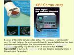 1983 convex array
