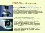 echo son ultrasonografy