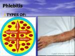 phlebitis