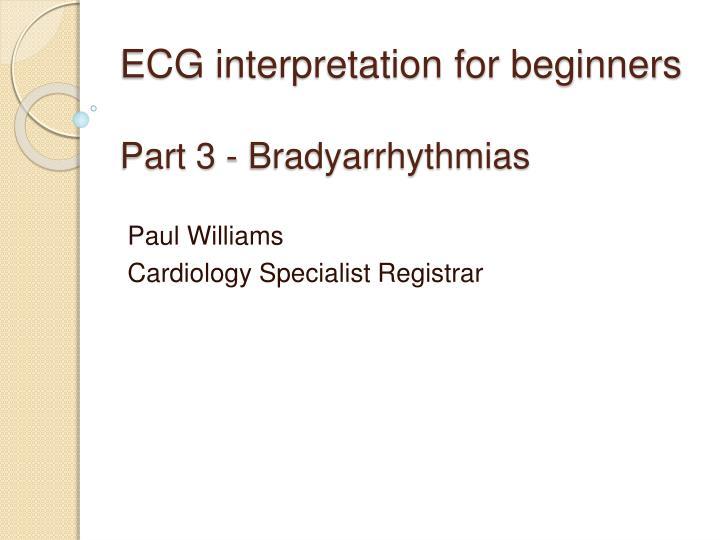 ecg interpretation for beginners part 3 bradyarrhythmias n.