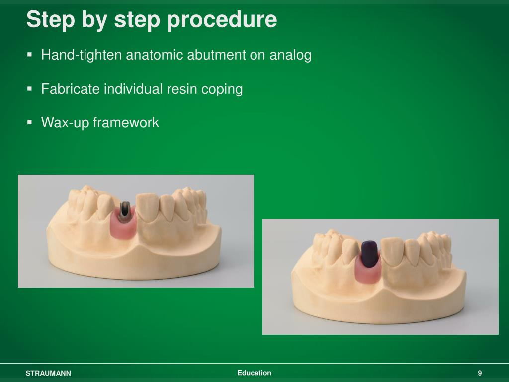 Step by step procedure