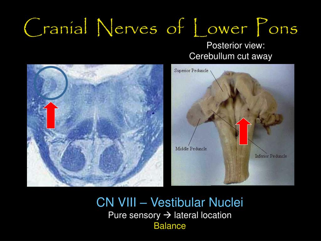 Cranial  Nerves  of  Lower  Pons