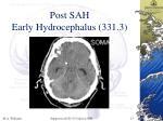 post sah early hydrocephalus 331 3