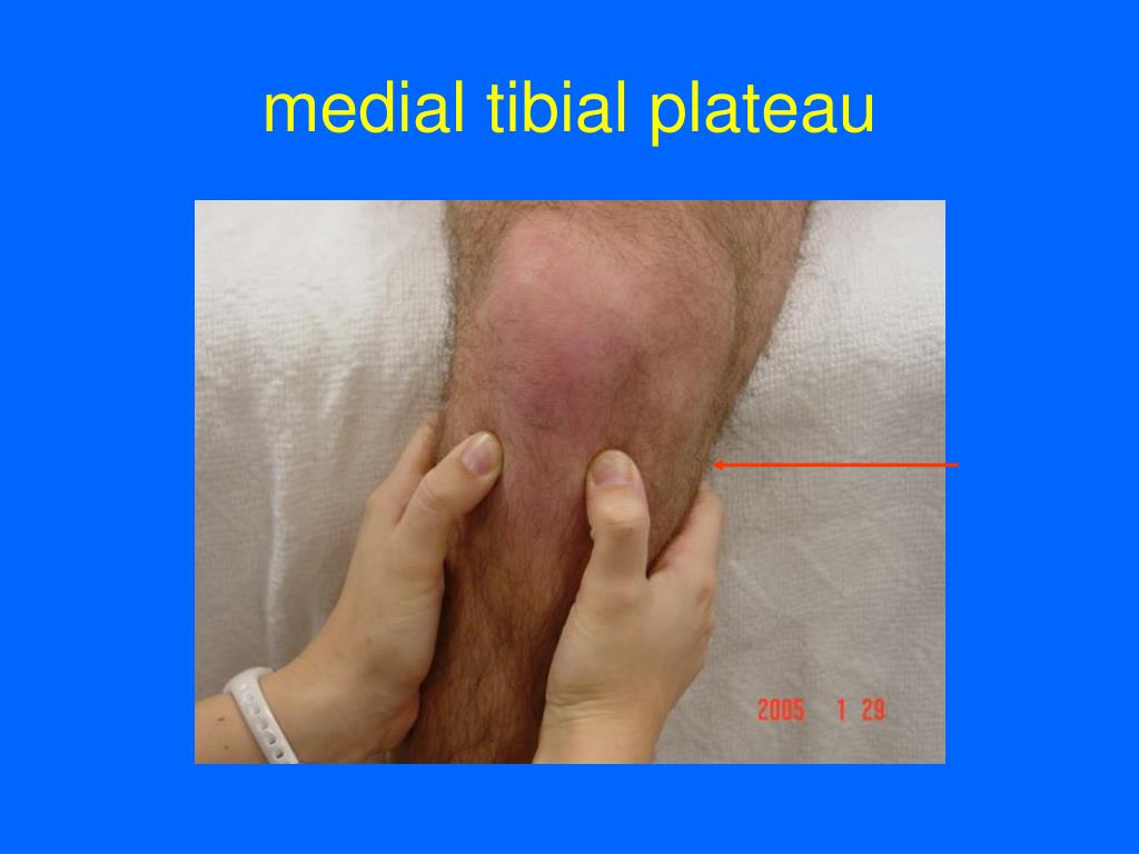 medial tibial plateau