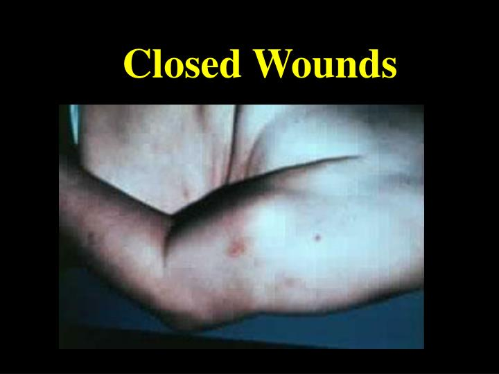 Closed Wounds