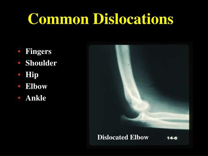 Common Dislocations