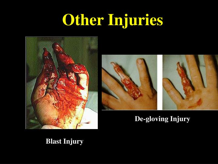 Other Injuries