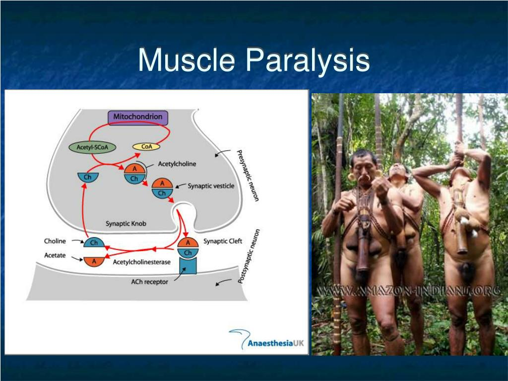 Muscle Paralysis