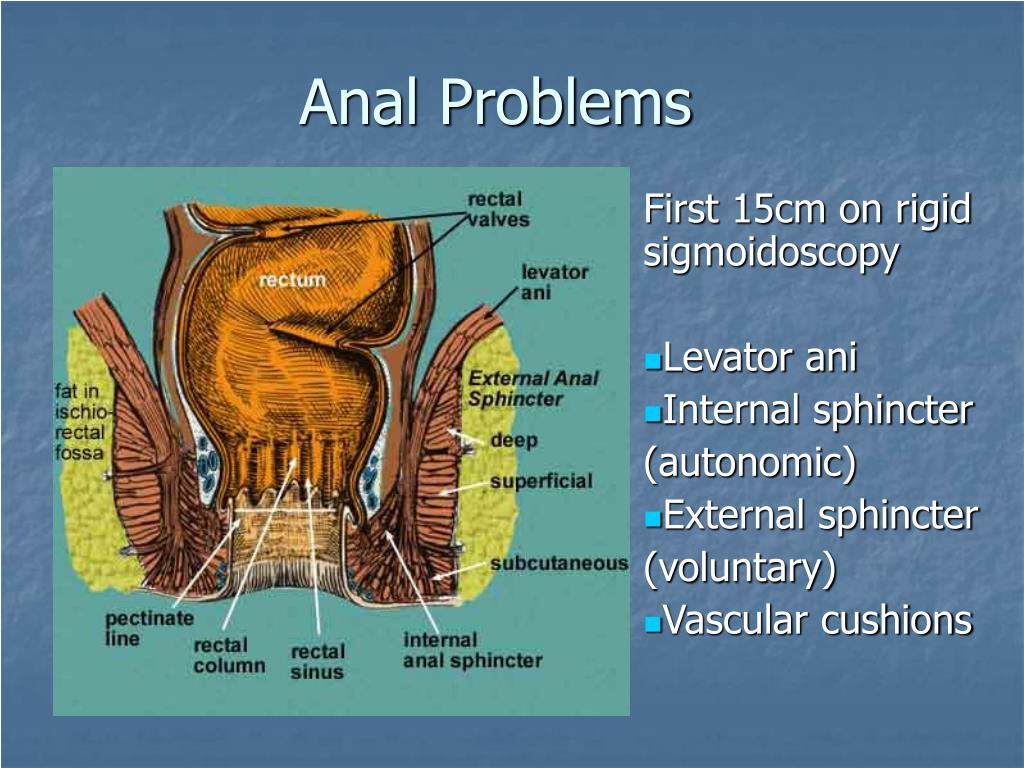 anal problems l.