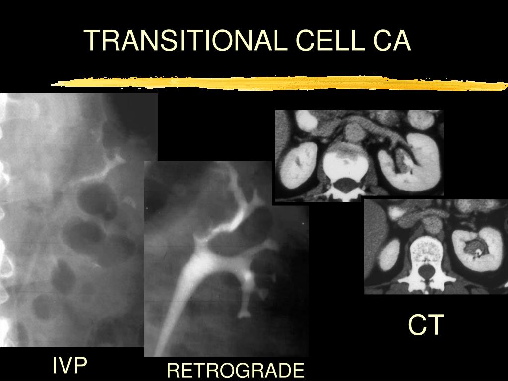 TRANSITIONAL CELL CA
