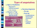 types of amputations