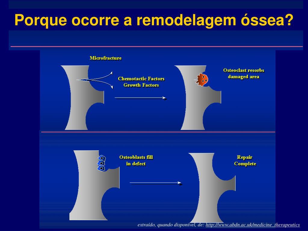 Porque ocorre a remodelagem óssea?