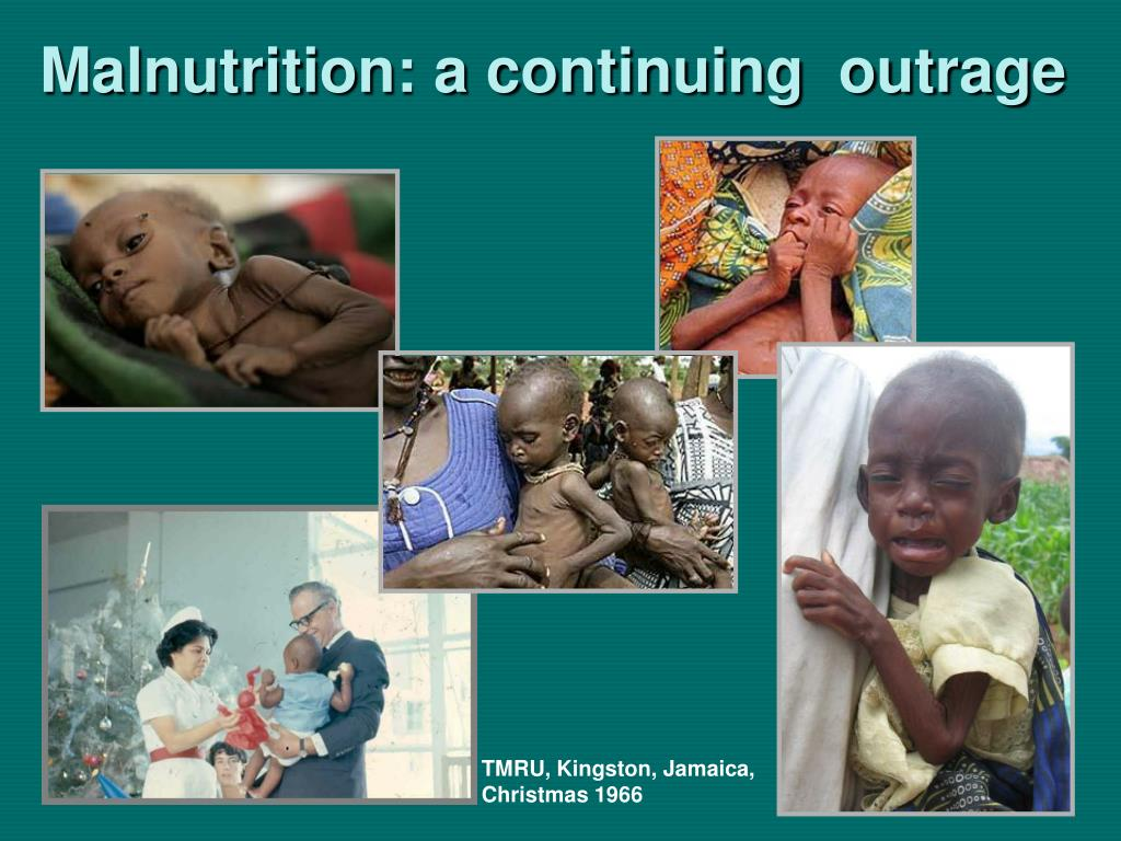 Malnutrition: a continuing  outrage