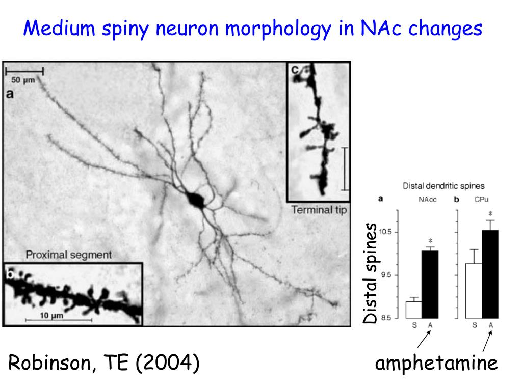 Medium spiny neuron morphology in NAc changes