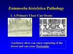 entamoeba histolytica pathology40