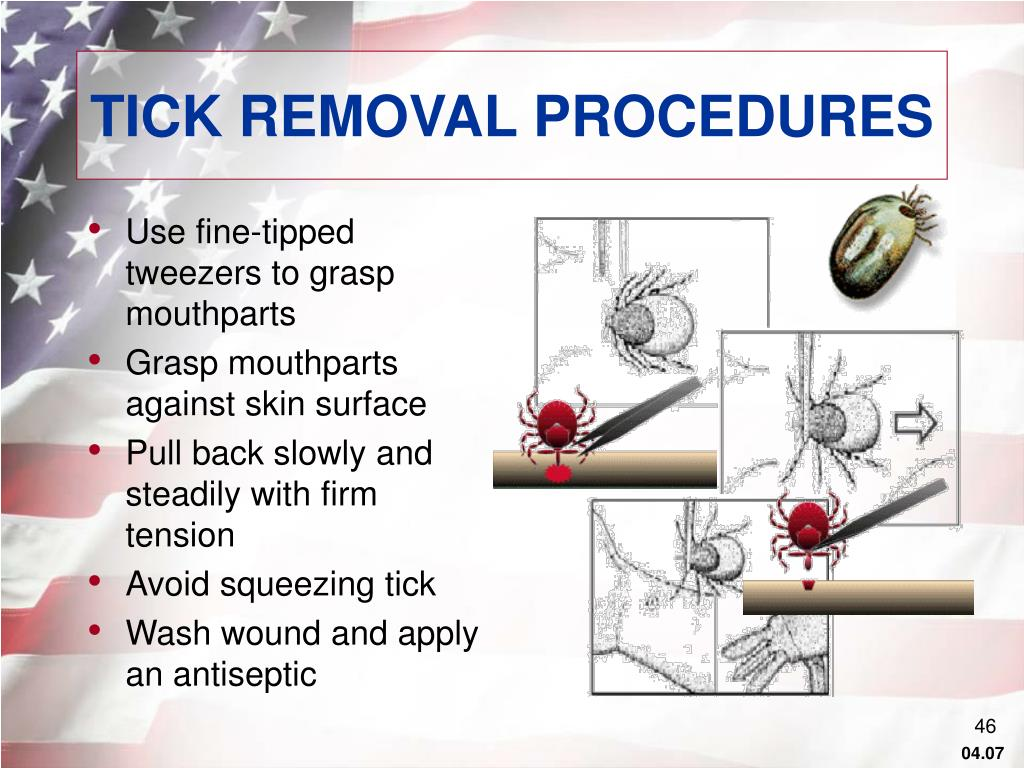 TICK REMOVAL PROCEDURES