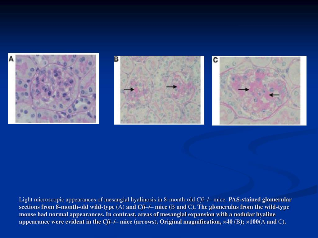 Light microscopic appearances of mesangial hyalinosis in 8-month-old