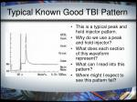 typical known good tbi pattern