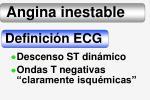 angina inestable5