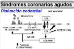 s ndromes coronarios agudos11