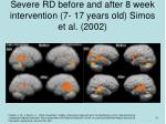 severe rd before and after 8 week intervention 7 17 years old simos et al 2002
