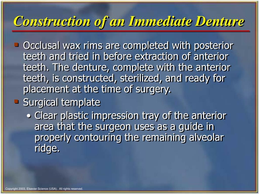 Construction of an Immediate Denture
