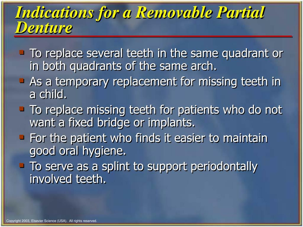 Indications for a Removable Partial Denture