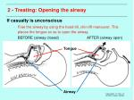 2 treating opening the airway15