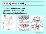 other injuries choking